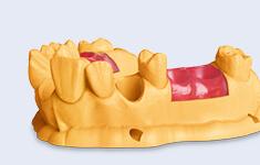 3D_gingiva-mask_schauarbeit